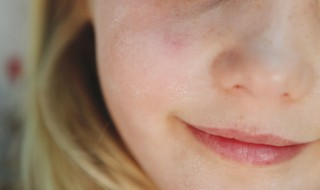 skin-care-for-kids-with-sensitive-skin-how-to-help-chapped-skin
